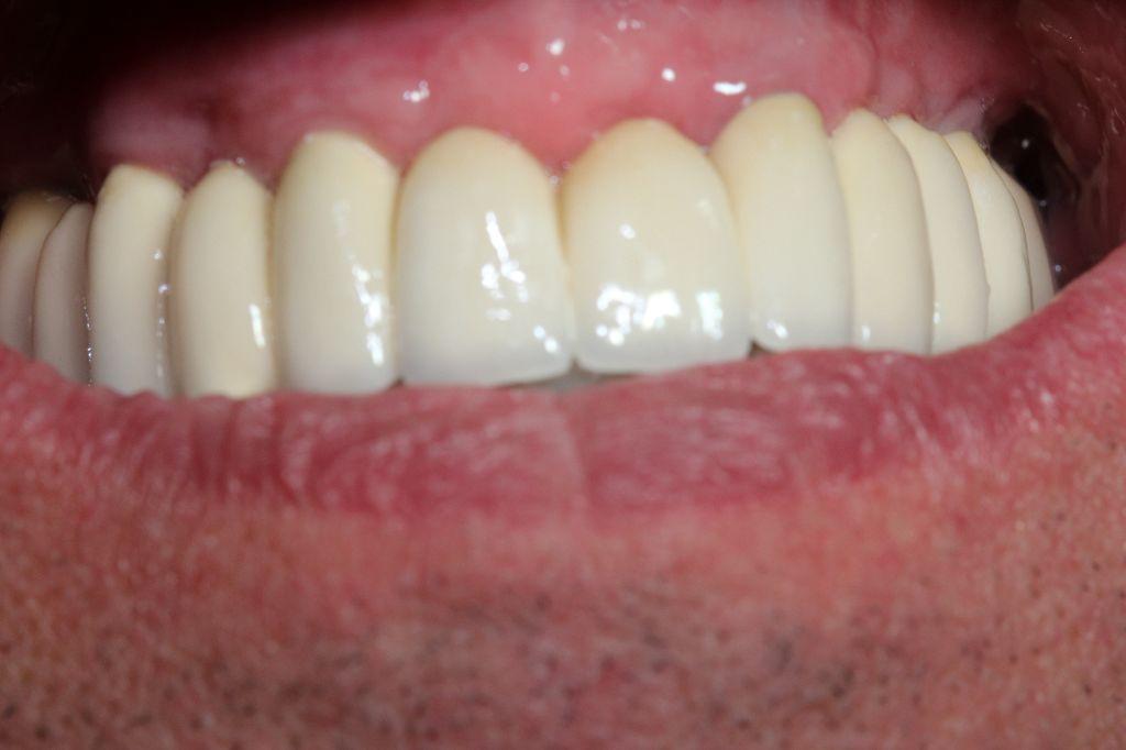 Rehabilitación total de un maxilar fijo